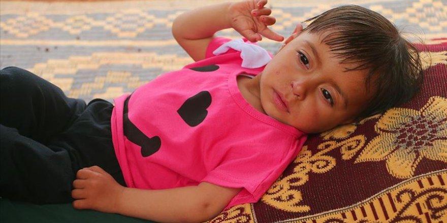 Suriyeli minik Aye'nin yaşaması acil ameliyata bağlı