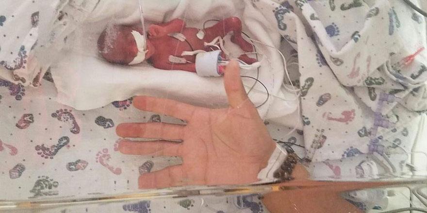 Allah'tan umut kesilmez: ABD'de 368 gram ağırlığında bebek dünyaya geldi