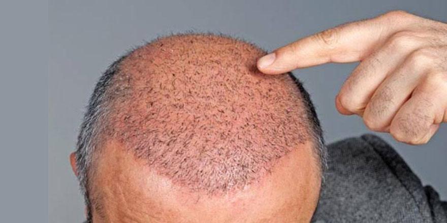 Soğuk kış aylarında saç dökülmelerine dikkat