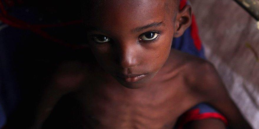 'Dünyada her gün 25 bin kişi açlıktan ölüyor'