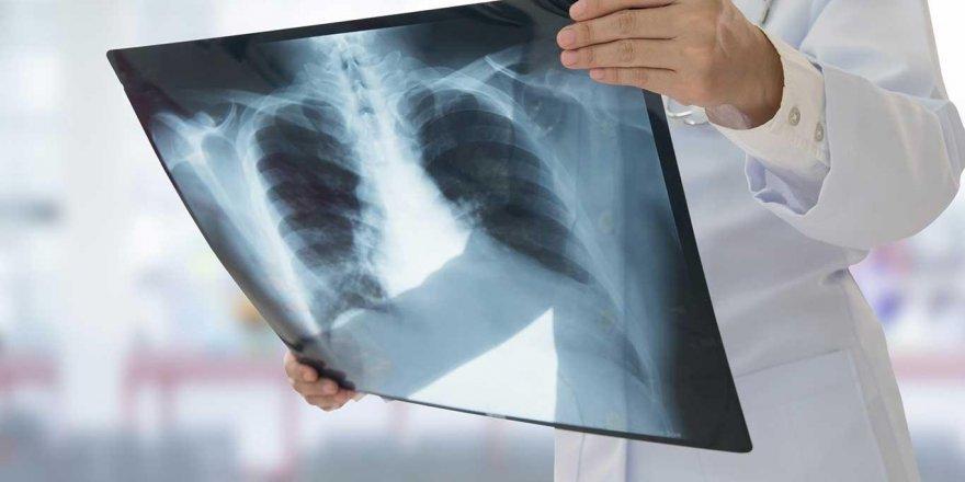 Sigaradan uzak durarak kansere karşı önlem al