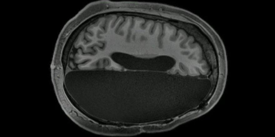 'Beyninin yarısı alınan insanlar normal yaşamını sürdürüyor'