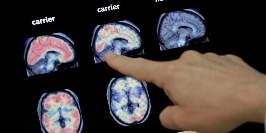 Alzheimer tedavisinde ilaçlar işe yaramıyor