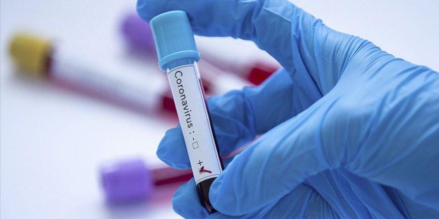 Yeni tip koronavirüsü 15 dakikada tespit eden kit geliştirildi