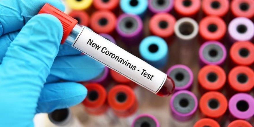 Dünya genelinde koronavirüsten şifa bulanların sayısı 102 bini geçti