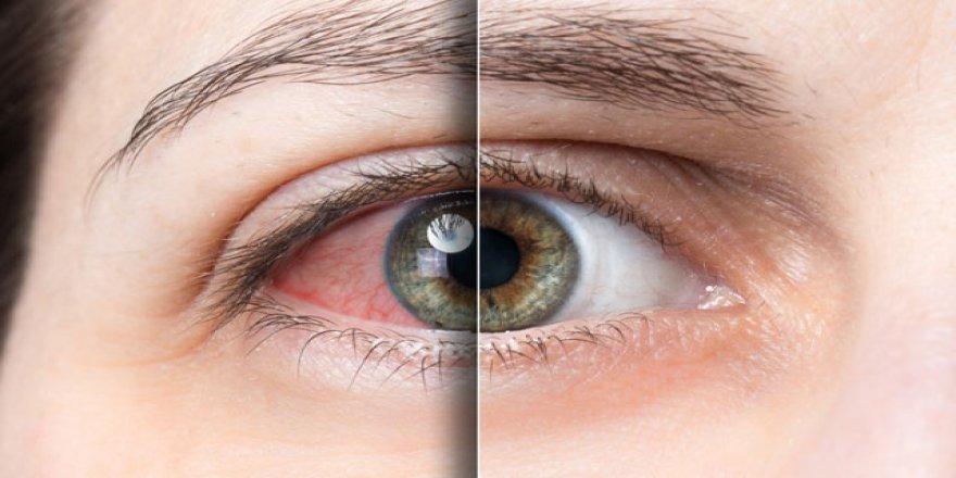 Göz uçuğu körlüğe neden olabiliyor