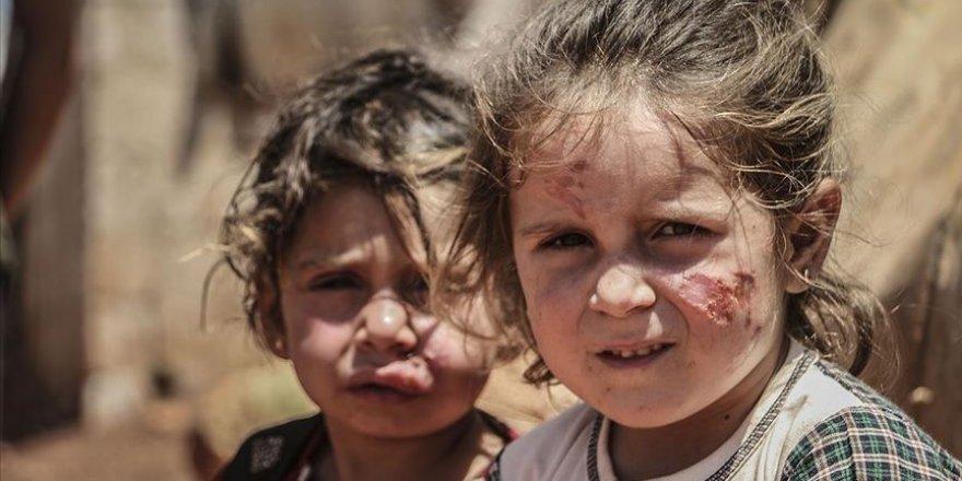 Şark çıbanı hastalığı İdlib'deki sığınmacı kamplarında yayılıyor