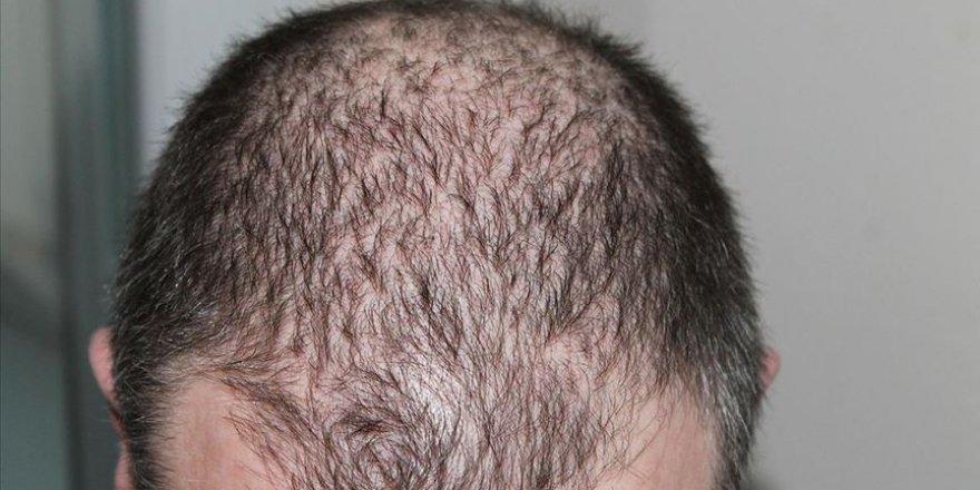 Saç dökülmelerinde Kovid-19 sonrası artış görüldü