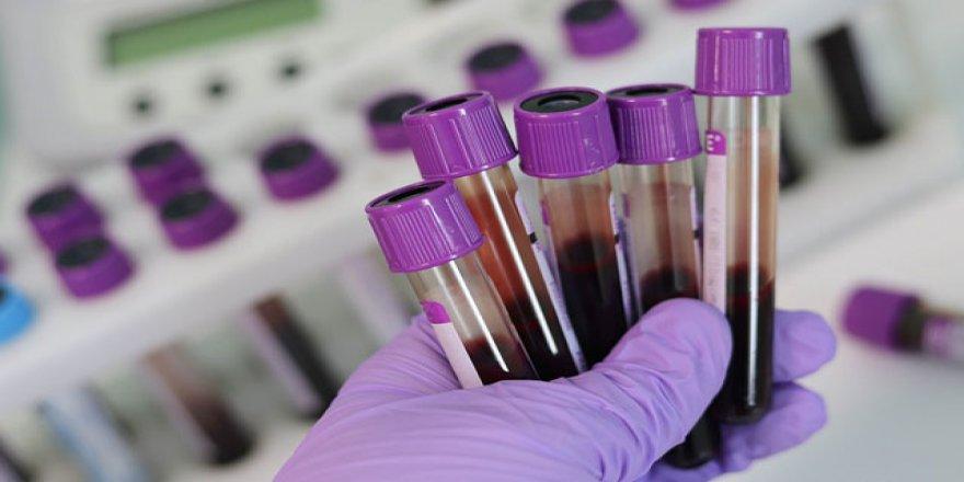 Kan grubu A olanların Kovid-19'a yakalanma riski daha yüksek olabilir