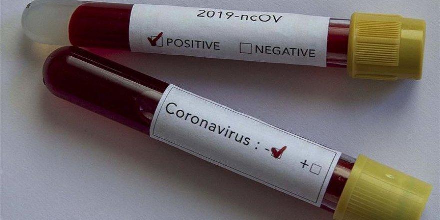 81 ile koronavirüs genelgesi