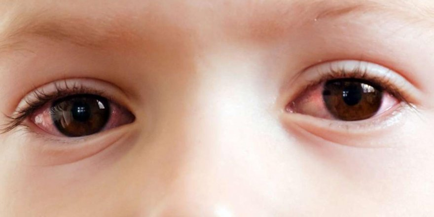 Yaz aylarında çocukların göz sağlığını bozan 5 tehlike