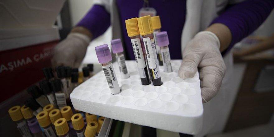Bilim kurulu üyesi, kan grubunun Koronavirüsten koruyucu bir yanının olmadığını açıkladı