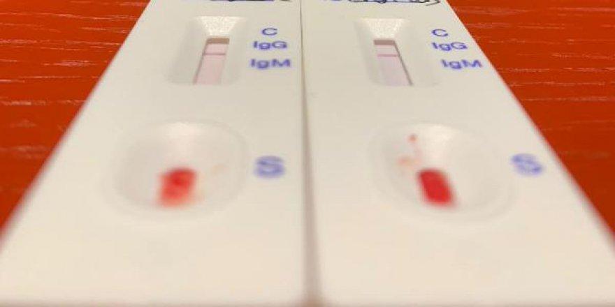 Uzmanlardan evde hızlı Kovid testi yapanlara uyarı