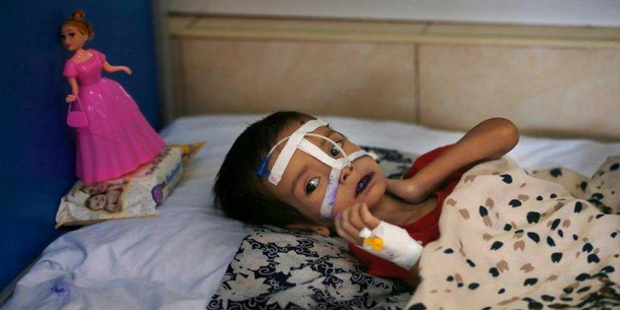 Dünya genelinde 5 yaşın altında 11 milyon çocuk açlıktan ölme sınırında