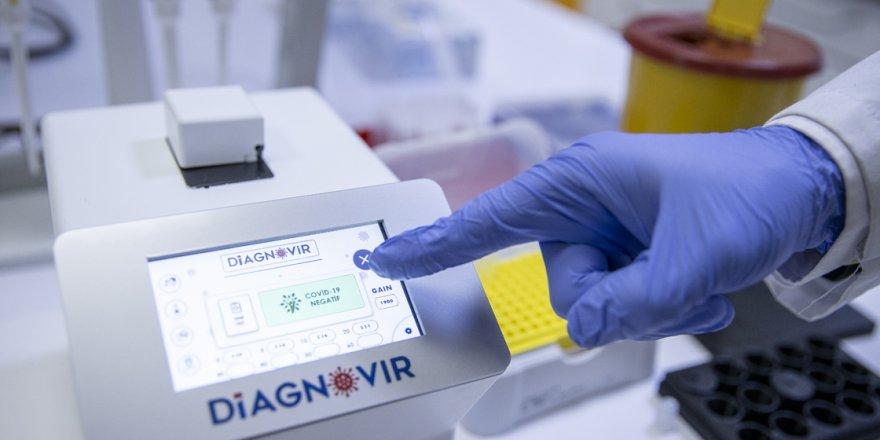 Türk bilim insanları koronavirüs teşhisini 10 saniyeye düşüren tanı sistemi geliştirdi