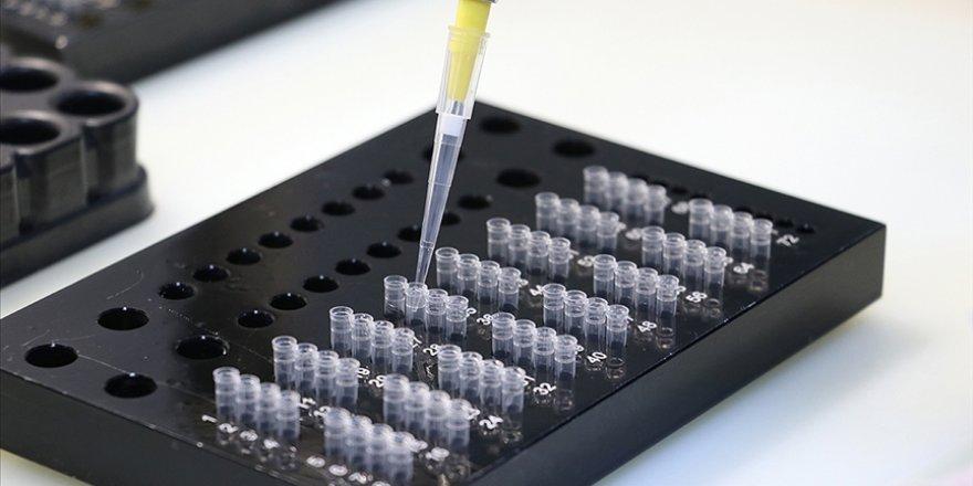Bazı COVID-19 hastalarının PCR testi sonucu neden negatif olabiliyor?