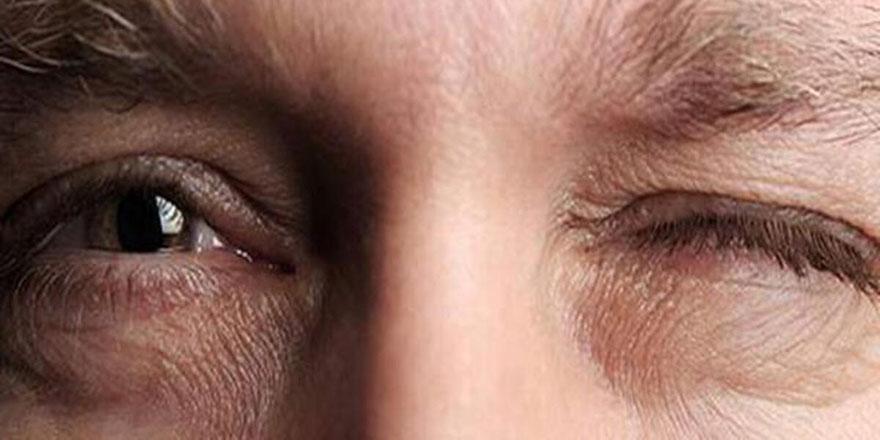 Sarı nokta hastalığı görme kaybına neden oluyor
