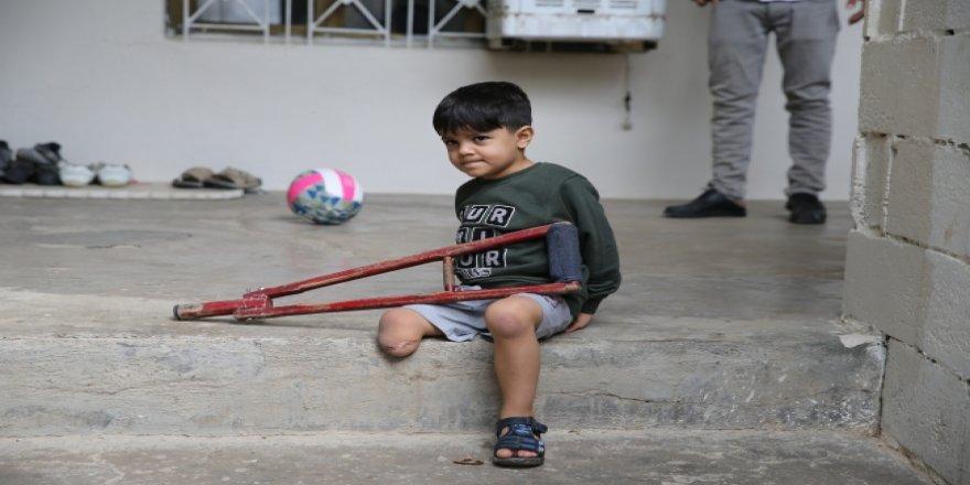 Suriyeli Minik Muhammed protez bacağına kavuştu
