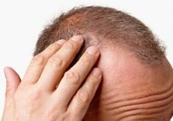 Mevsim geçişlerinde saç dökülmesine dikkat