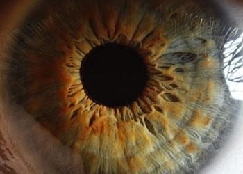 Gözlerimizi mikroplara karşı koruyan kim?