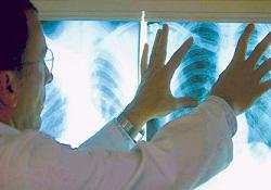 Gereksiz röntgen kanseri arttırıyor
