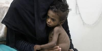 Yemen'de kıtlık en çok çocukları vuruyor